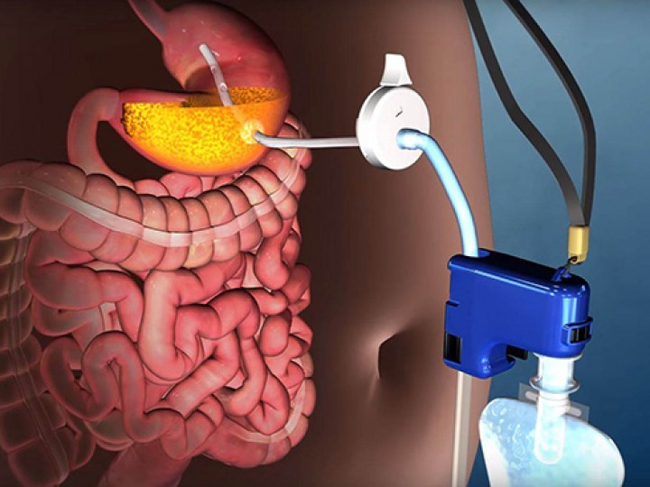 Dispositivo promete ajudar a perder peso sugando a comida diretamente do estômago
