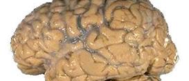Emagrecer pode melhorar memória e concentração