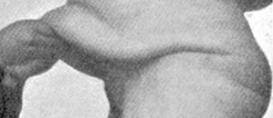 Um gordo de raiz no spa – prólogo